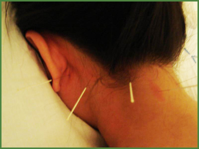patient receiving acupuncture treatment on the neck